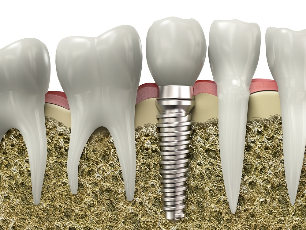 what you need to know about the cost of dental implants